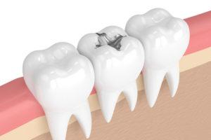 Mercury-Free Fillings Cosmetic and Restorative Dental Services Wayne NJ