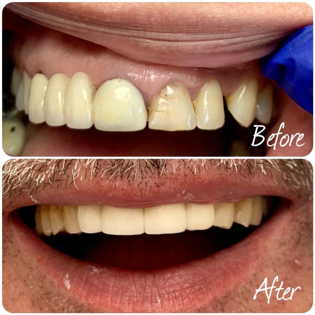 Zirconium Crowns Before and After
